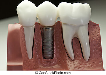 This model show the teeth have been capped and the stainless pin in the gums.
