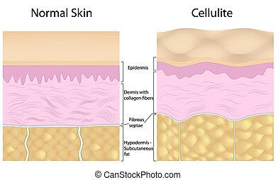 Cellulite versus smooth skin