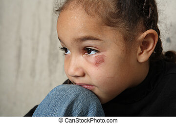 young girl sits next to a concrete wall. She has a black eye.