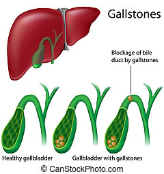 Gallbladder with and without stones, eps8