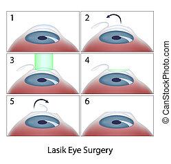laser assisted in situ keratomileusis