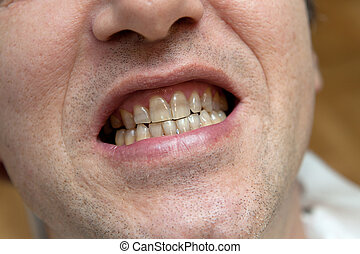 Man with yellow teeth. The harm of tobacco concept.