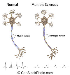Multiple sclerosis, eps8