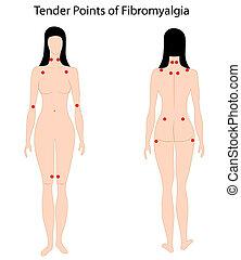 Tender points of Fibromyalgia, eps8