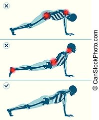 Wrong and correct plank pose. Right and wrong execution technique of sport exercise. Common mistakes in sport workout.