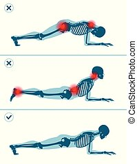 Wrong and correct plank position. Right and wrong execution technique of sport exercise. Common mistakes in sport workout.